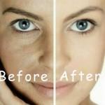 त्वचा का कालापन मिटाने एवं रंग साफ करने के लिए